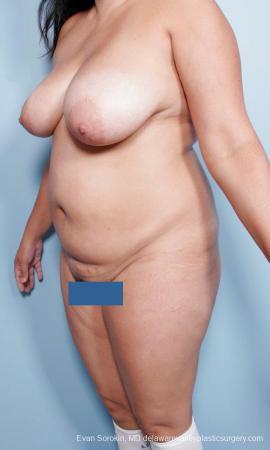 Philadelphia Mommy Makeover 9442 - Before Image 4