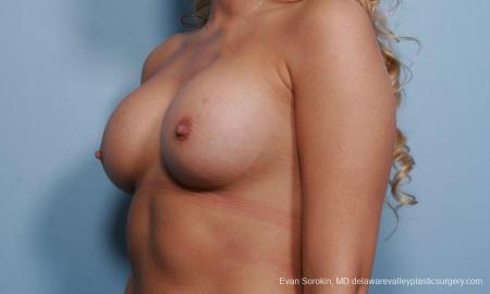 Philadelphia Breast Augmentation 9356 -  After Image 4