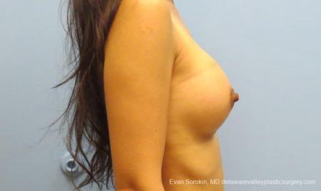 Philadelphia Breast Augmentation 8661 -  After Image 4