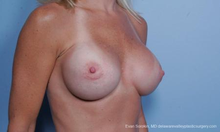 Philadelphia Breast Augmentation 9454 -  After Image 2
