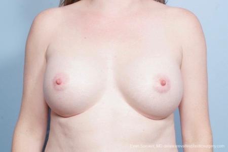 Philadelphia Breast Augmentation 8795 -  After Image 1