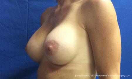 Philadelphia Breast Augmentation 10248 -  After Image 4