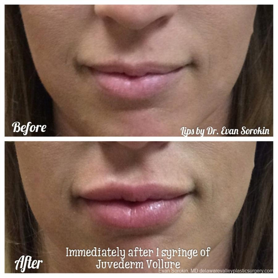 Lip Filler: Patient 22 - Before and After Image 1