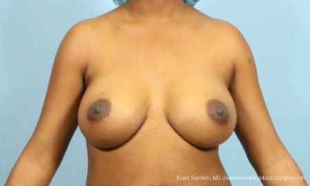 Philadelphia Breast Augmentation 9173 -  After Image 1