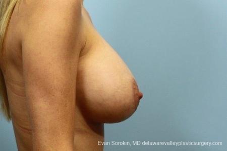 Philadelphia Breast Augmentation 8782 -  After Image 4