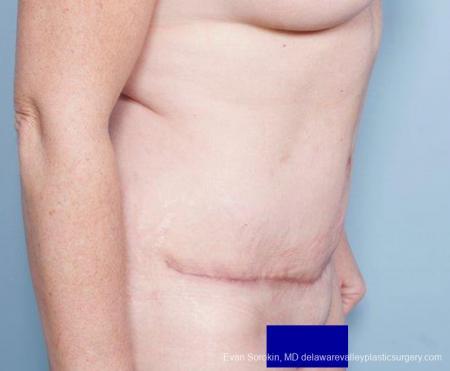 Philadelphia Abdominoplasty 9315 -  After Image 4