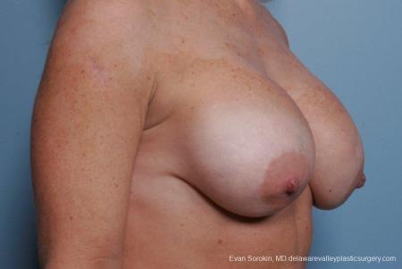 Philadelphia Breast Augmentation 8693 - Before Image 2