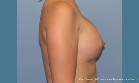 Philadelphia Breast Augmentation 10193 -  After Image 3