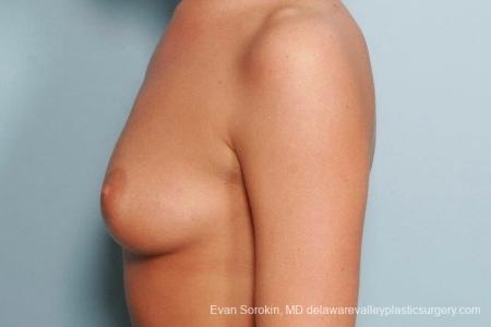 Philadelphia Breast Augmentation 8792 - Before and After Image 5