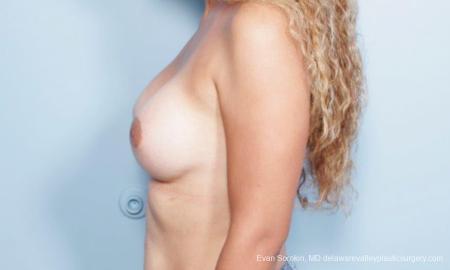 Philadelphia Breast Augmentation 9347 -  After Image 5