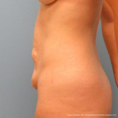 Philadelphia Abdominoplasty 9465 - Before and After Image 5