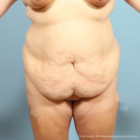 Philadelphia Abdominoplasty 9466 - Before Image 1
