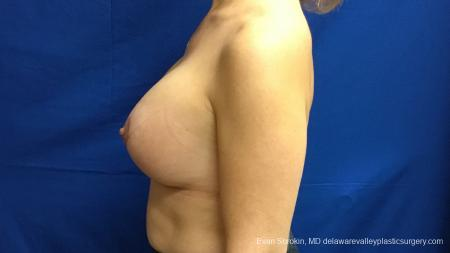 Philadelphia Breast Lift and Augmentation 13179 -  After Image 5