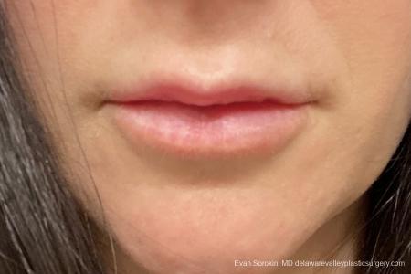 Lip Augmentation: Patient 11 - After Image 1