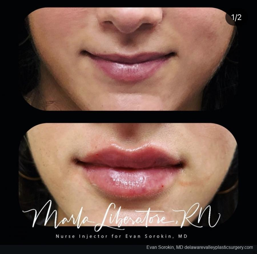 Lip Augmentation: Patient 20 - Before and After Image 1