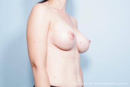Philadelphia Breast Lift and Augmentation 8686 -  After Image 2