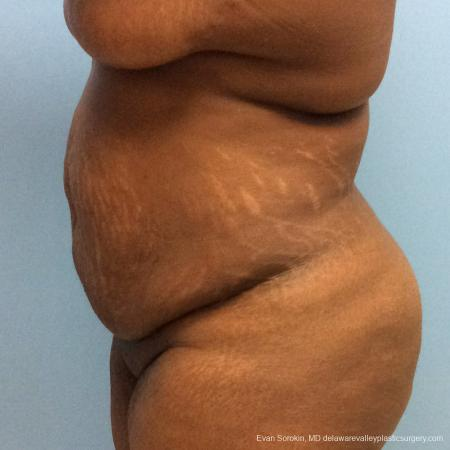 Philadelphia Abdominoplasty 10817 - Before and After Image 5
