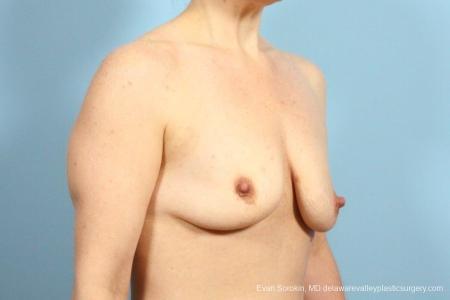 Philadelphia Breast Lift and Augmentation 8687 - Before Image 2