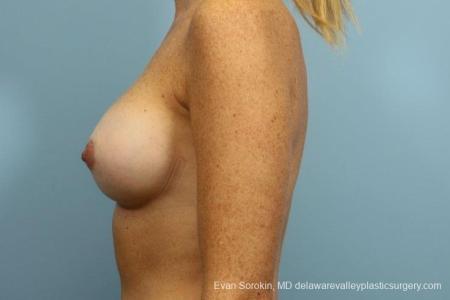 Philadelphia Breast Augmentation 8654 -  After Image 5