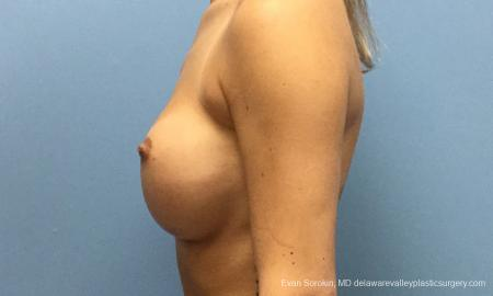 Philadelphia Breast Augmentation 10816 - Before and After Image 5