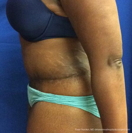 Philadelphia Abdominoplasty 10817 -  After Image 5