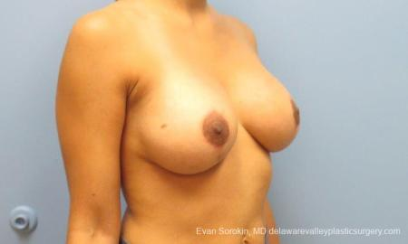 Philadelphia Breast Lift and Augmentation 10119 -  After Image 2