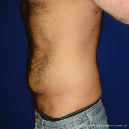 Philadelphia Abdominoplasty 9468 - Before and After Image 5