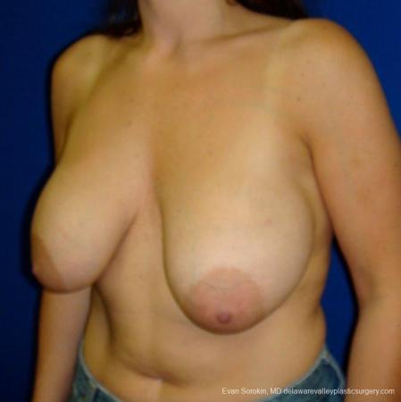 Philadelphia Breast Augmentation 8695 - Before Image 3