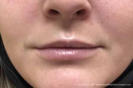 Lip Filler: Patient 14 - Before Image 1