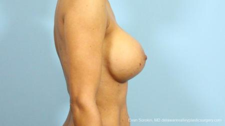 Philadelphia Breast Augmentation 9288 -  After Image 3