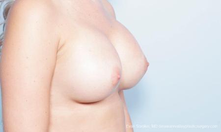 Philadelphia Breast Augmentation 9303 -  After Image 2