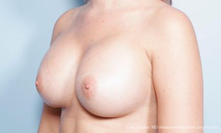Philadelphia Breast Augmentation 9303 -  After Image 4
