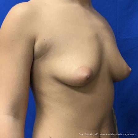 Breast Lift And Augmentation: Patient 43 - Before Image 2