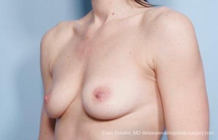 Philadelphia Breast Augmentation 8783 - Before Image 3