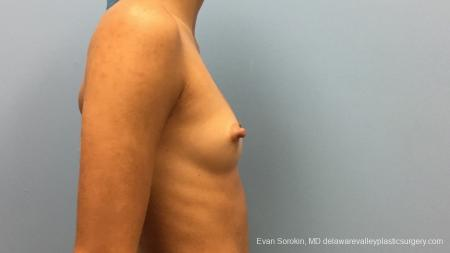Philadelphia Breast Augmentation 13176 - Before Image 3