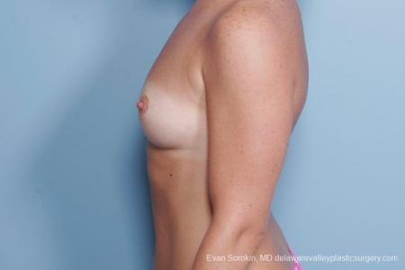 Philadelphia Breast Augmentation 8785 - Before and After Image 5