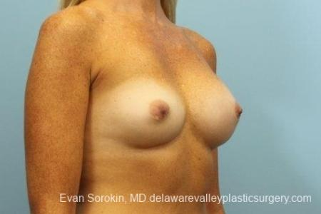Philadelphia Breast Augmentation 8654 - Before Image 2