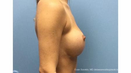 Philadelphia Breast Augmentation 13177 - Before Image 3