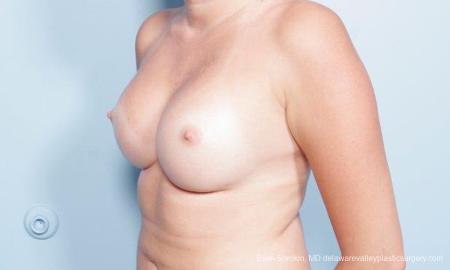Philadelphia Breast Augmentation 9301 -  After Image 4