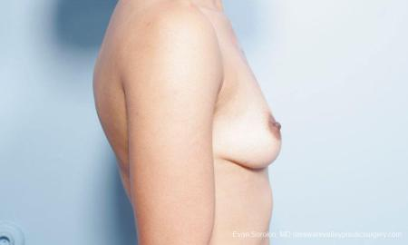 Philadelphia Breast Augmentation 9305 - Before Image 3
