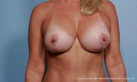 Philadelphia Breast Lift and Augmentation 9375 - After Image