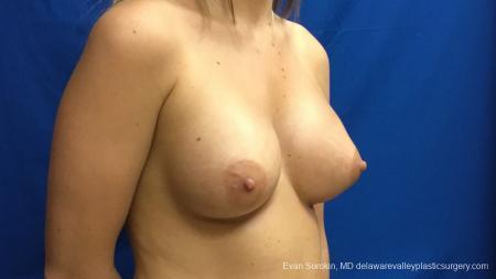 Philadelphia Breast Augmentation 12540 -  After Image 2