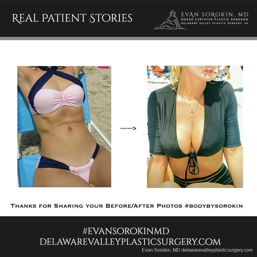 Real Patient Stories: Patient 9 - Before and After Image 1