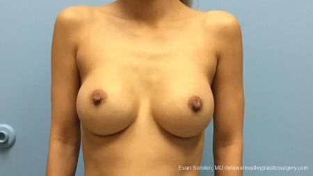 Philadelphia Breast Augmentation 13178 - Before Image 1