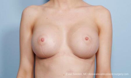 Philadelphia Breast Augmentation 8663 -  After Image 1