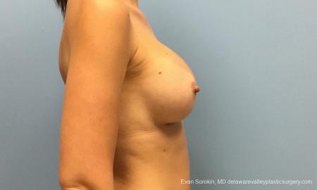 Philadelphia Breast Augmentation 12514 -  After Image 4