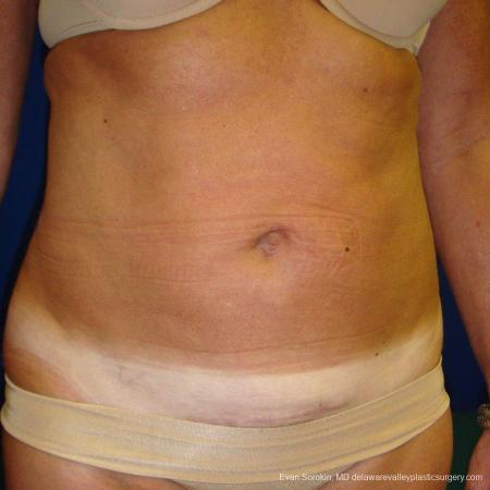 Philadelphia Liposuction 9488 -  After Image 4