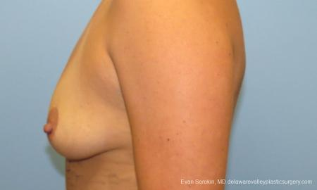 Philadelphia Breast Augmentation 9388 - Before and After Image 5