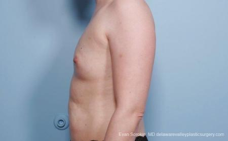 Breast Augmentation: Patient 54 - Before and After Image 5