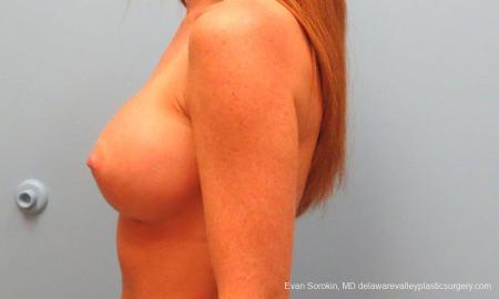 Philadelphia Breast Augmentation 9179 -  After Image 5